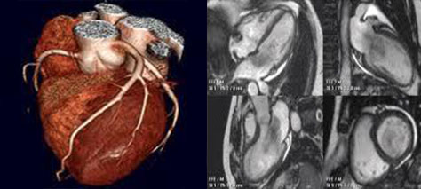 ISchemic Heart Disease Cardiac CT and MR2222